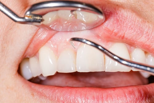 Periodontal dental examination to have a healthy mouth and teeth