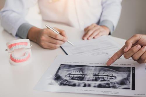 Dentist pointing at a dental x-ray