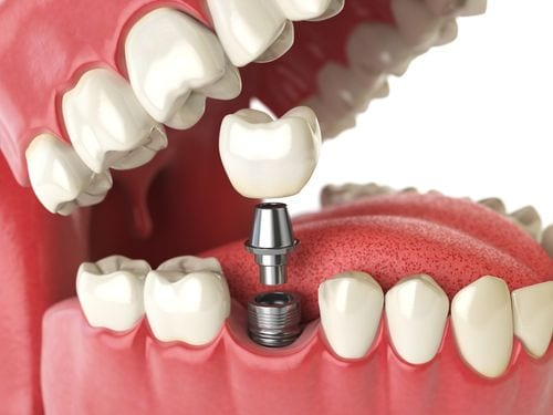 An illustration of how dental implants are installed into the mouth.