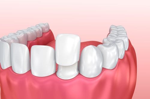 An illustration of how porcelaine veneers can creater a balanced smile.