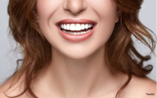 A woman smiles after having dental work done, feeling confident enough to show her teeth off.