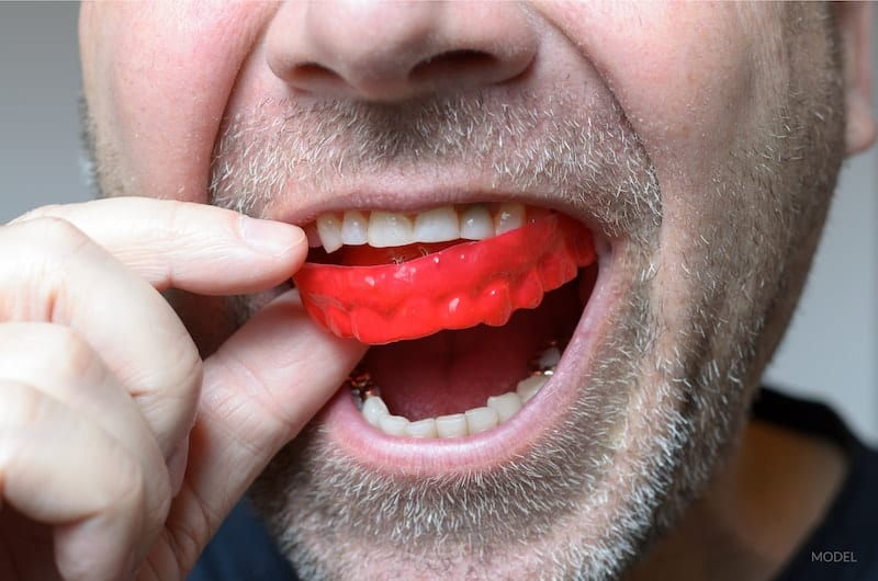 Man putting in a red mouth guard to protect his teeth from grinding (bruxism).
